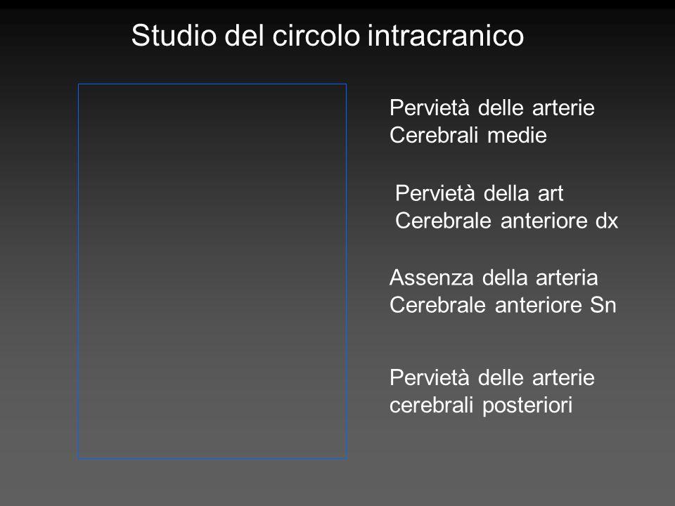 Assenza della arteria Cerebrale anteriore Sn Pervietà delle arterie Cerebrali medie Pervietà delle arterie cerebrali posteriori Pervietà della art Cer