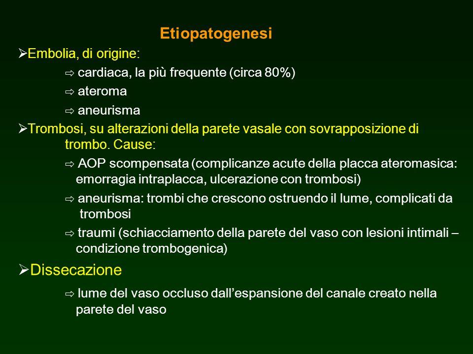 Etiopatogenesi Embolia, di origine: cardiaca, la più frequente (circa 80%) ateroma aneurisma Trombosi, su alterazioni della parete vasale con sovrappo