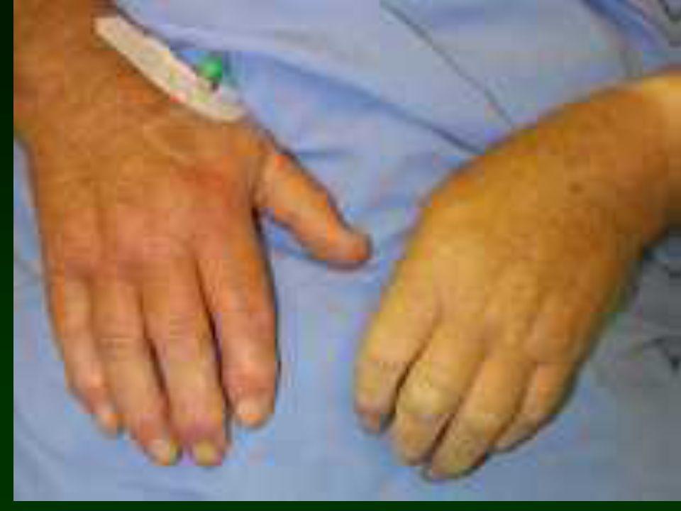 Diagnosi importante la clinica per capire letiologia, daiuto lanamnesi: AOP, aneurismi noti al paziente, cardiopatia dilatativa, ecc.