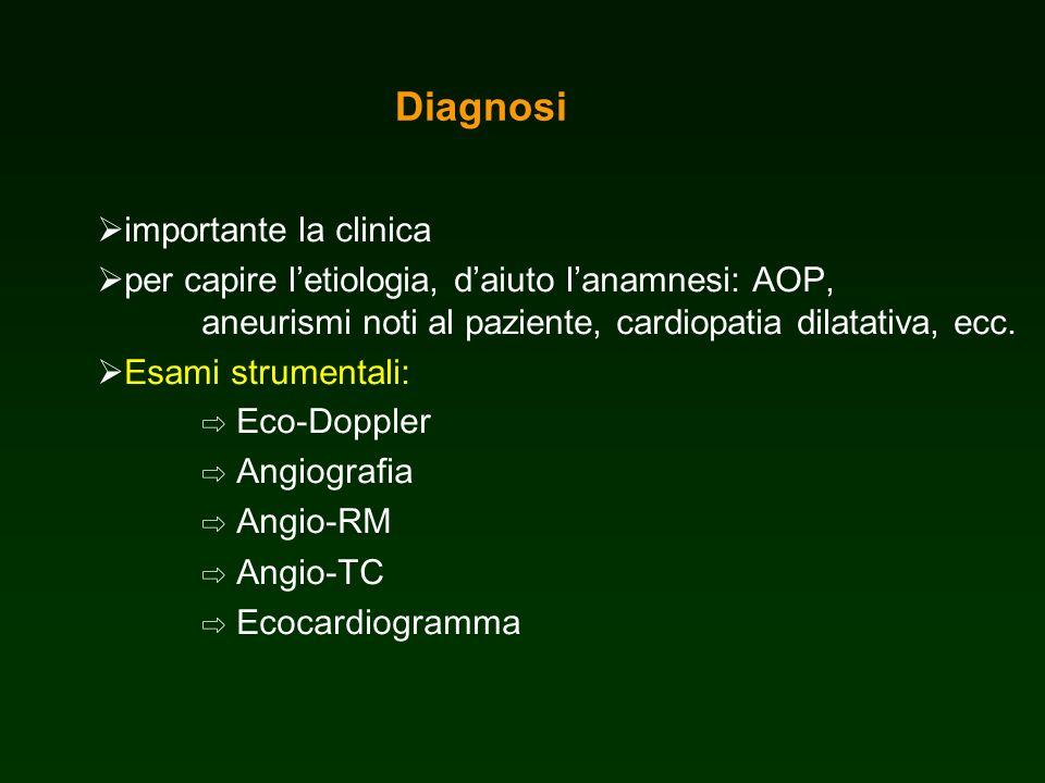Diagnosi importante la clinica per capire letiologia, daiuto lanamnesi: AOP, aneurismi noti al paziente, cardiopatia dilatativa, ecc. Esami strumental