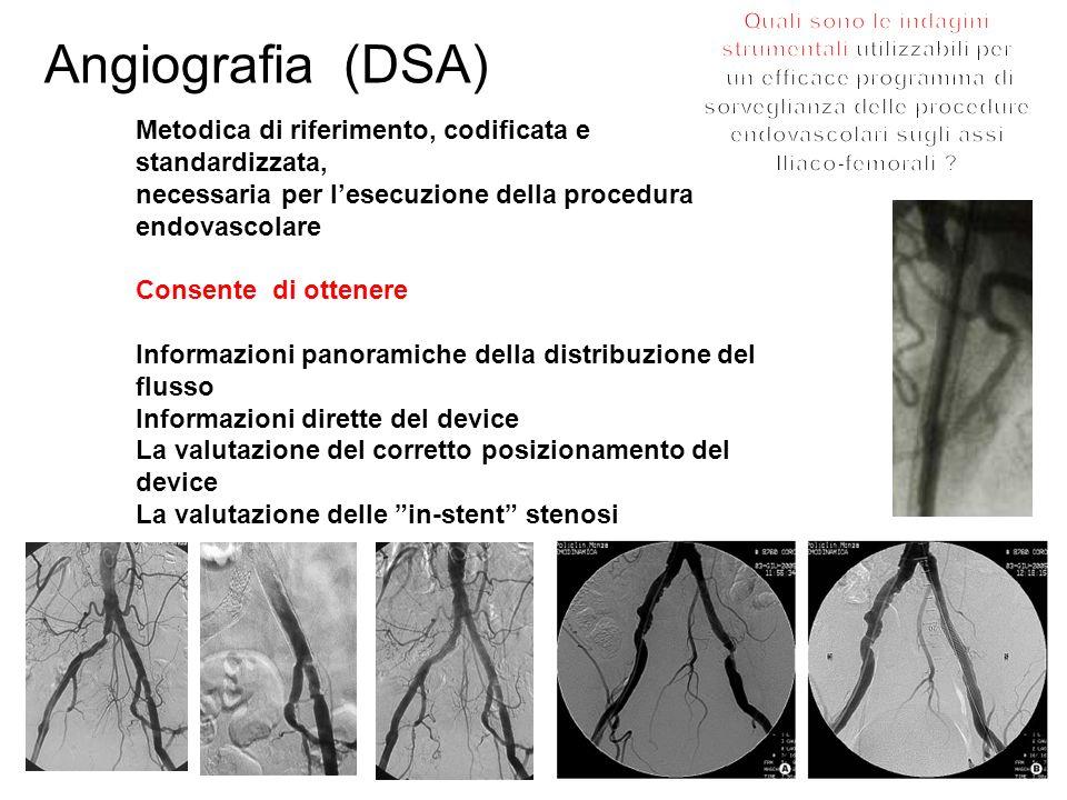 Angiografia (DSA) Metodica di riferimento, codificata e standardizzata, necessaria per lesecuzione della procedura endovascolare Consente di ottenere