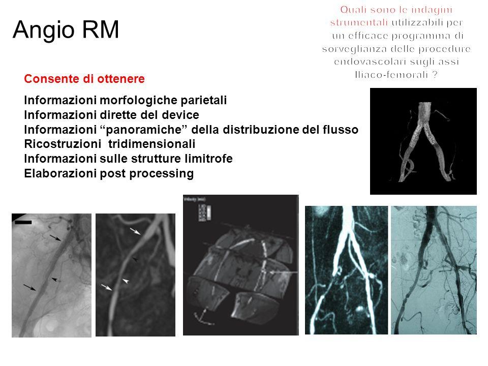 Angio RM Consente di ottenere Informazioni morfologiche parietali Informazioni dirette del device Informazioni panoramiche della distribuzione del flu