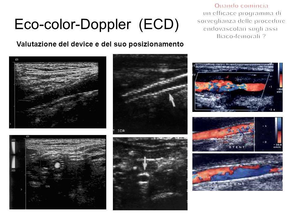 Eco-color-Doppler (ECD) Valutazione del device e del suo posizionamento