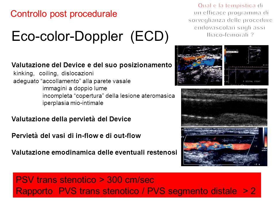 Controllo post procedurale Eco-color-Doppler (ECD) Valutazione del Device e del suo posizionamento kinking,coiling, dislocazioni adeguato accollamento