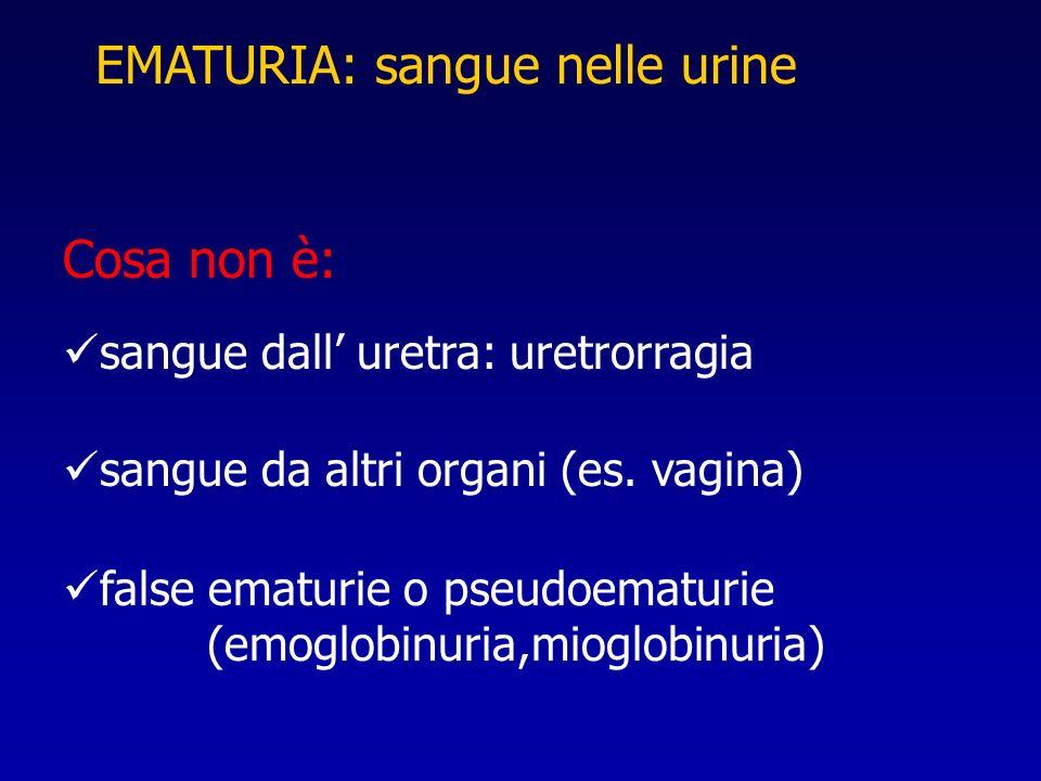 EMATURIA: sangue nelle urine Cosa non è: sangue dall uretra: uretrorragia sangue da altri organi (es. vagina) false ematurie o pseudoematurie (emoglob