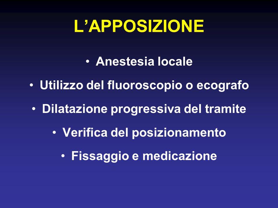 LAPPOSIZIONE Anestesia locale Utilizzo del fluoroscopio o ecografo Dilatazione progressiva del tramite Verifica del posizionamento Fissaggio e medicazione