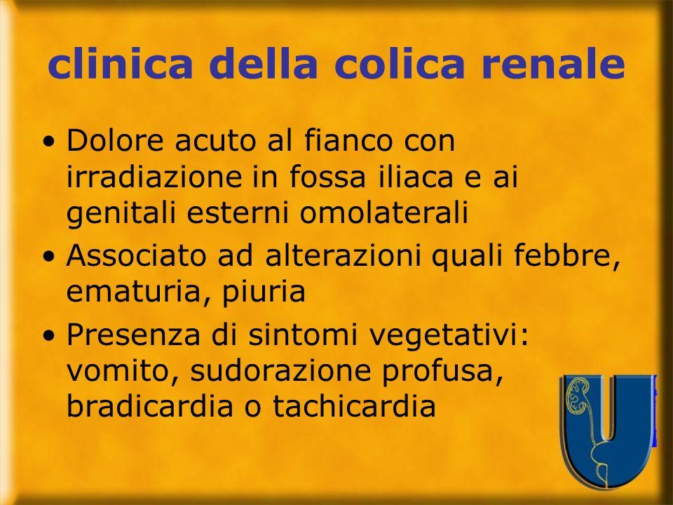 clinica della colica renale Dolore acuto al fianco con irradiazione in fossa iliaca e ai genitali esterni omolaterali Associato ad alterazioni quali f