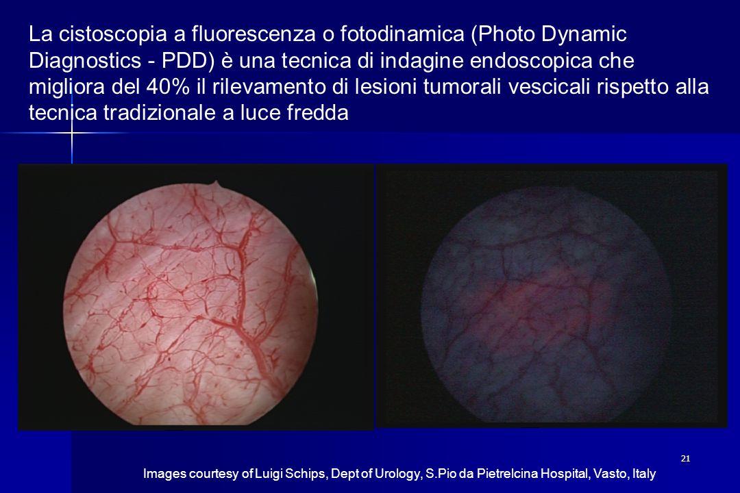 21 La cistoscopia a fluorescenza o fotodinamica (Photo Dynamic Diagnostics - PDD) è una tecnica di indagine endoscopica che migliora del 40% il rileva