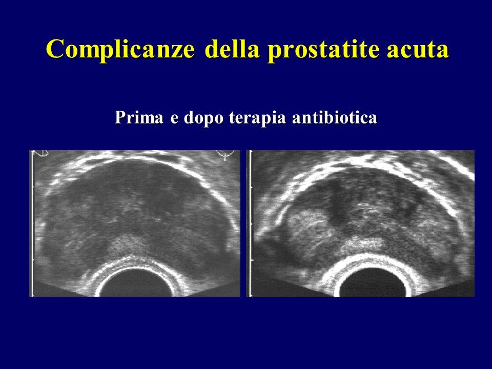 Complicanze della prostatite acuta Prima e dopo terapia antibiotica