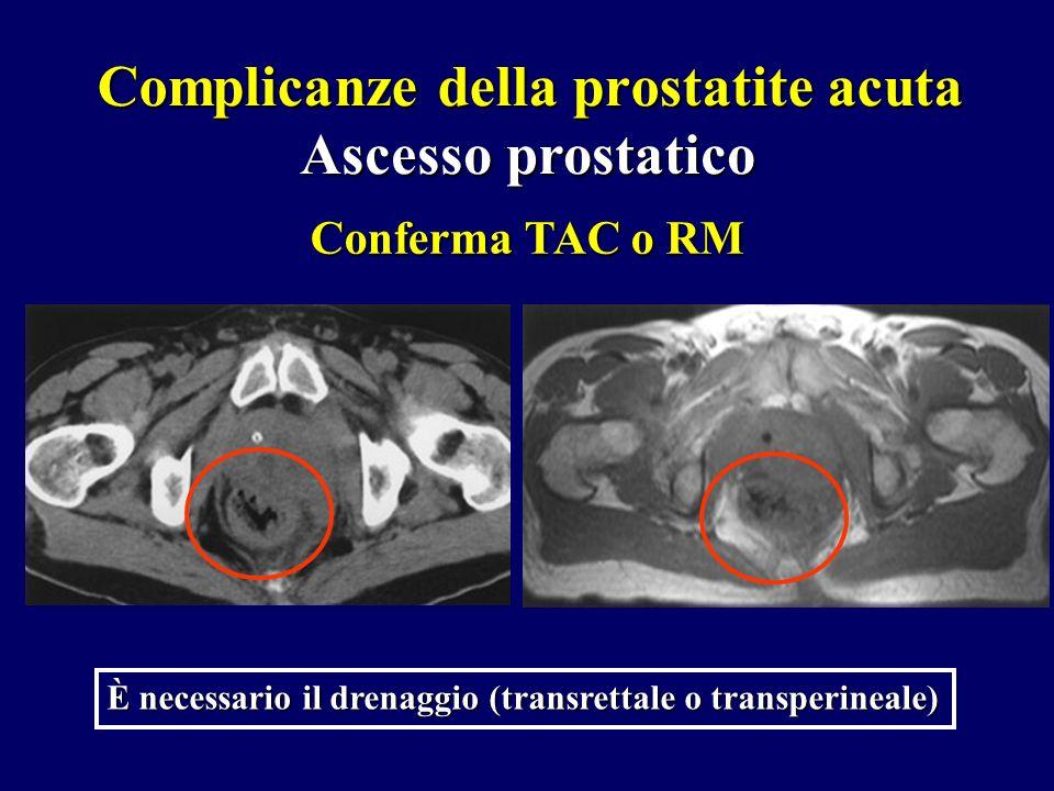 Ascesso prostatico Conferma TAC o RM È necessario il drenaggio (transrettale o transperineale) Complicanze della prostatite acuta