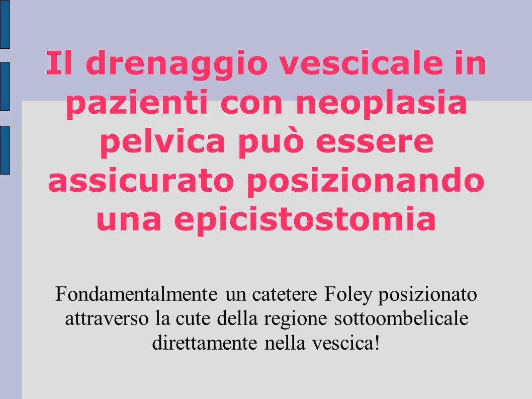 Il drenaggio vescicale in pazienti con neoplasia pelvica può essere assicurato posizionando una epicistostomia Fondamentalmente un catetere Foley posizionato attraverso la cute della regione sottoombelicale direttamente nella vescica!