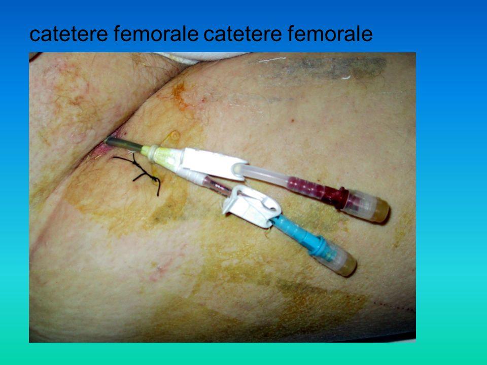 catetere femorale