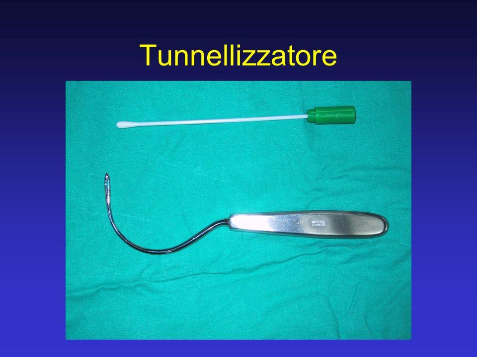 Tecnica miniinvasiva applicabile anche con altri materiali (Stratasis TF, Monarc, etc) Delicata chirurgia e delicata assistenza postoperatoria Elevati tassi di successo >90% Punti cruciali