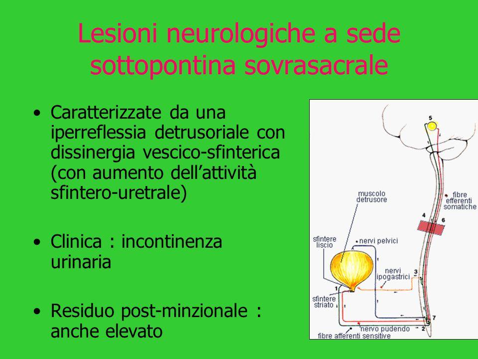 Lesioni neurologiche a sede sottopontina sovrasacrale Caratterizzate da una iperreflessia detrusoriale con dissinergia vescico-sfinterica (con aumento