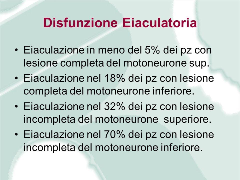Disfunzione Eiaculatoria Eiaculazione in meno del 5% dei pz con lesione completa del motoneurone sup. Eiaculazione nel 18% dei pz con lesione completa
