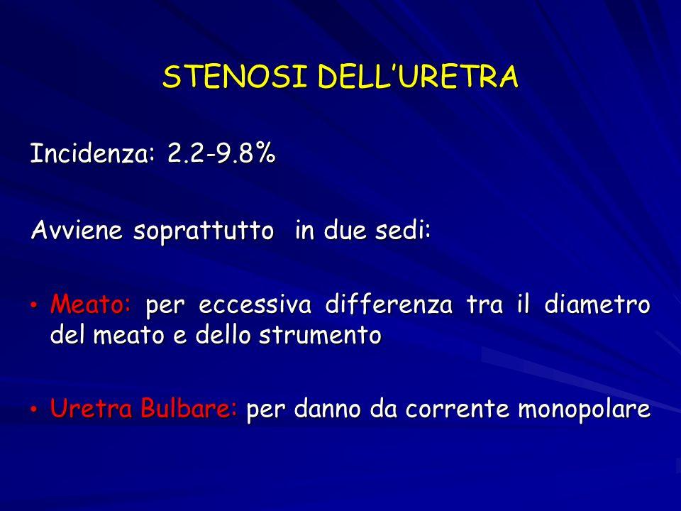 STENOSI COLLO VESCICALE Incidenza: 0.3-9.2% Più frequente nelle prostate più piccole (<30 g)