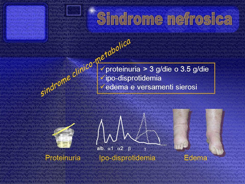 proteinuria > 3 g/die o 3.5 g/die ipo-disprotidemia edema e versamenti sierosi sindrome clinico-metabolica alb. 1 2 ProteinuriaIpo-disprotidemiaEdema