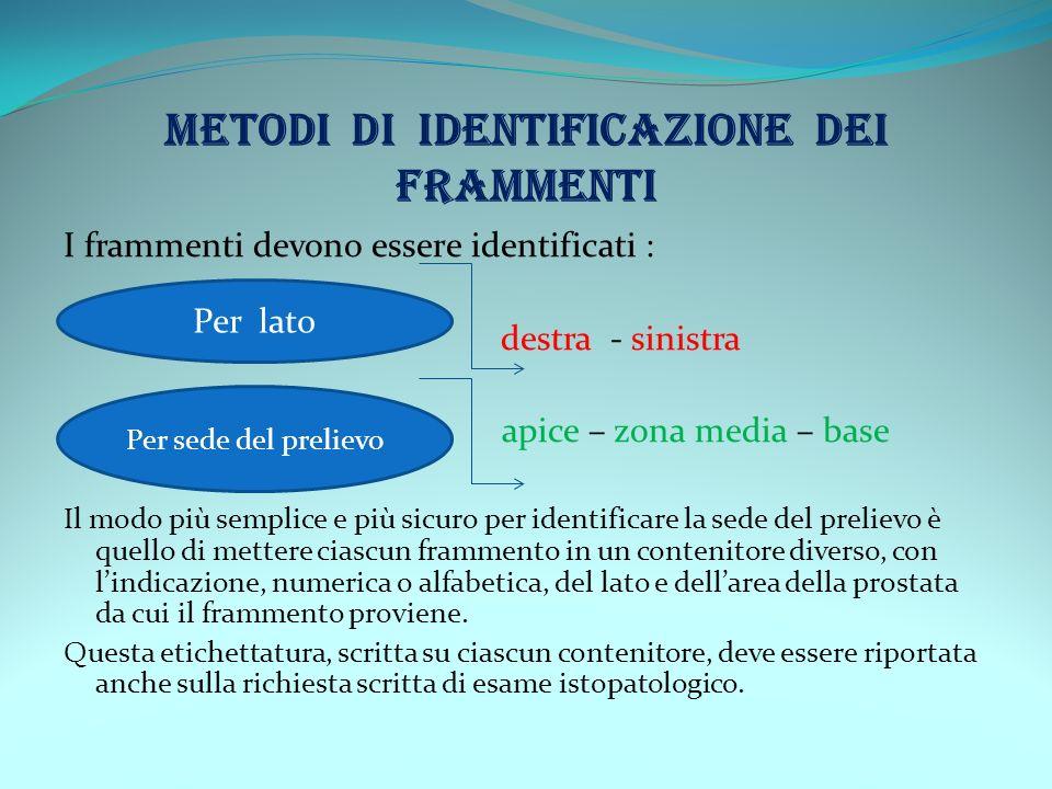 METODI DI IDENTIFICAZIONE DEI FRAMMENTI I frammenti devono essere identificati : destra - sinistra p apice – zona media – base Il modo più semplice e