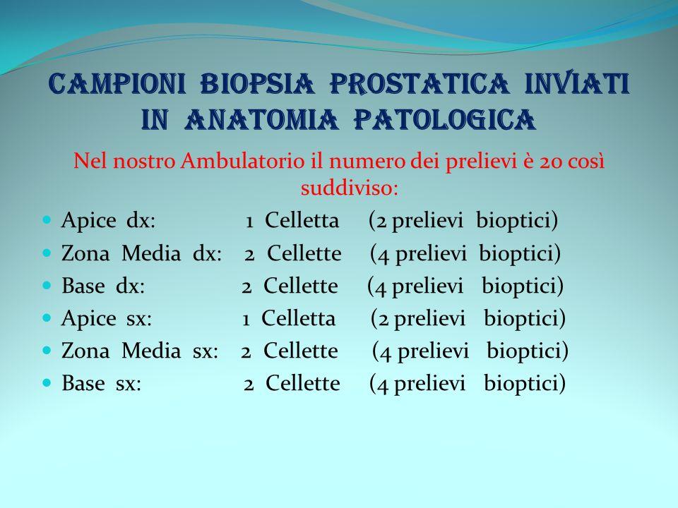 CAMPIONI BIOPSIA PROSTATICA INVIATI IN ANATOMIA PATOLOGICA Nel nostro Ambulatorio il numero dei prelievi è 20 così suddiviso: Apice dx: 1 Celletta (2