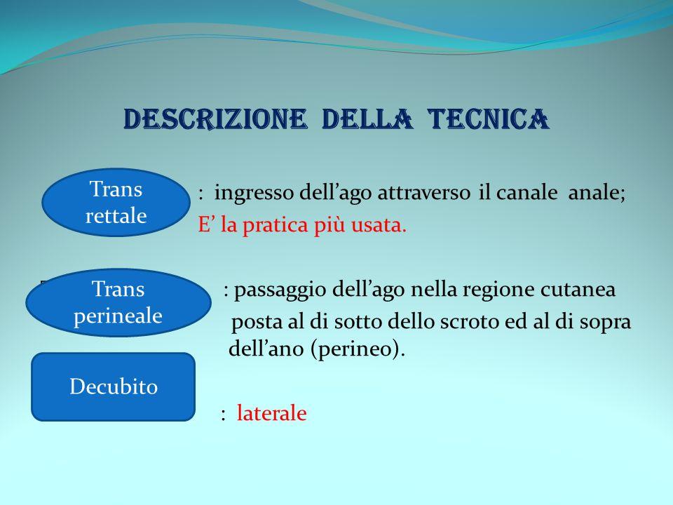 DESCRIZIONE DELLA TECNICA : ingresso dellago attraverso il canale anale; E la pratica più usata. Trans Perineale: : passaggio dellago nella regione cu