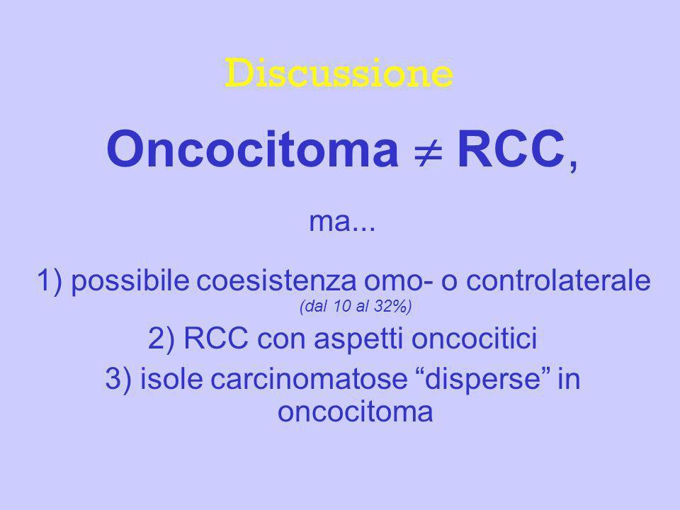 Discussione Oncocitoma RCC, ma... 1) possibile coesistenza omo- o controlaterale (dal 10 al 32%) 2) RCC con aspetti oncocitici 3) isole carcinomatose