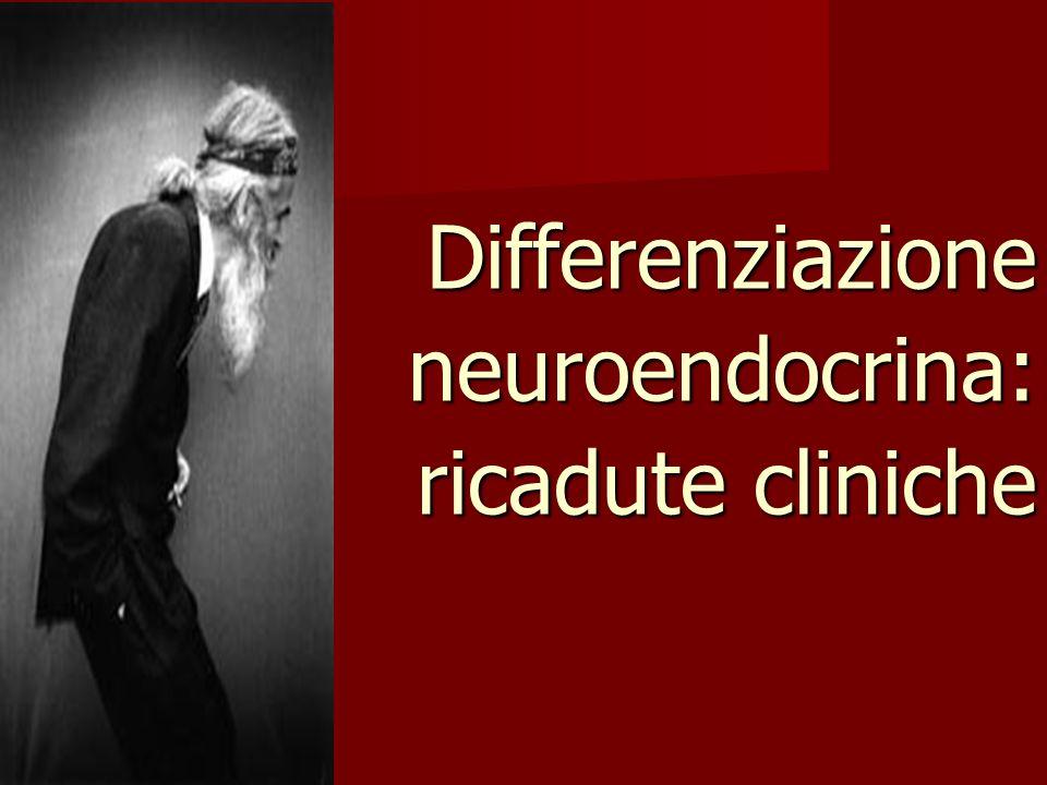 Differenziazione neuroendocrina: ricadute cliniche
