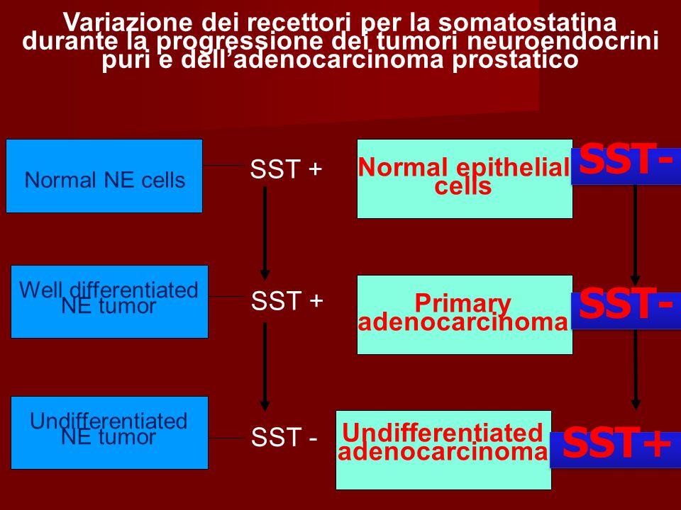 Variazione dei recettori per la somatostatina durante la progressione dei tumori neuroendocrini puri e delladenocarcinoma prostatico Normal epithelial