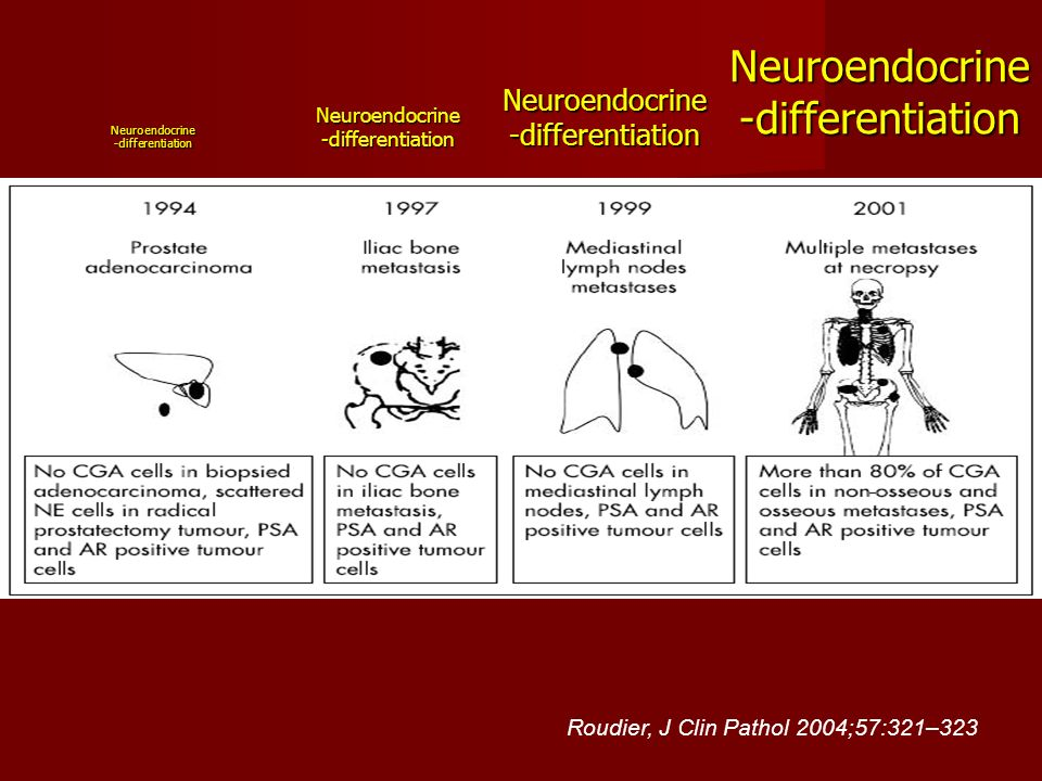 Neuroendocrine -differentiation Roudier, J Clin Pathol 2004;57:321–323