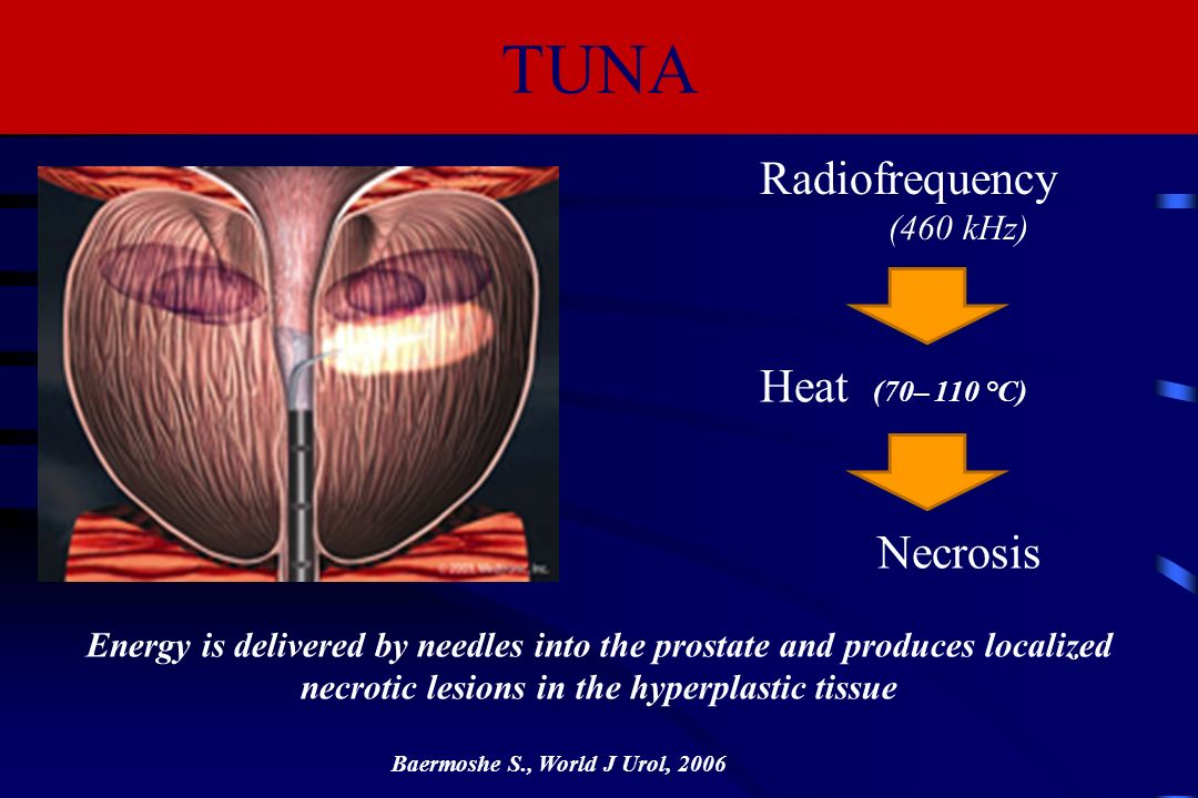 Baermoshe S., World J Urol, 2006 Radiofrequency (460 kHz) Heat (70– 110 °C) Necrosis Energy is delivered by needles into the prostate and produces localized necrotic lesions in the hyperplastic tissue TUNA