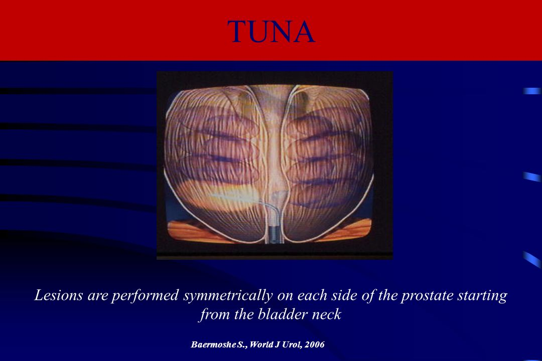 Lesions are performed symmetrically on each side of the prostate starting from the bladder neck Baermoshe S., World J Urol, 2006 TUNA
