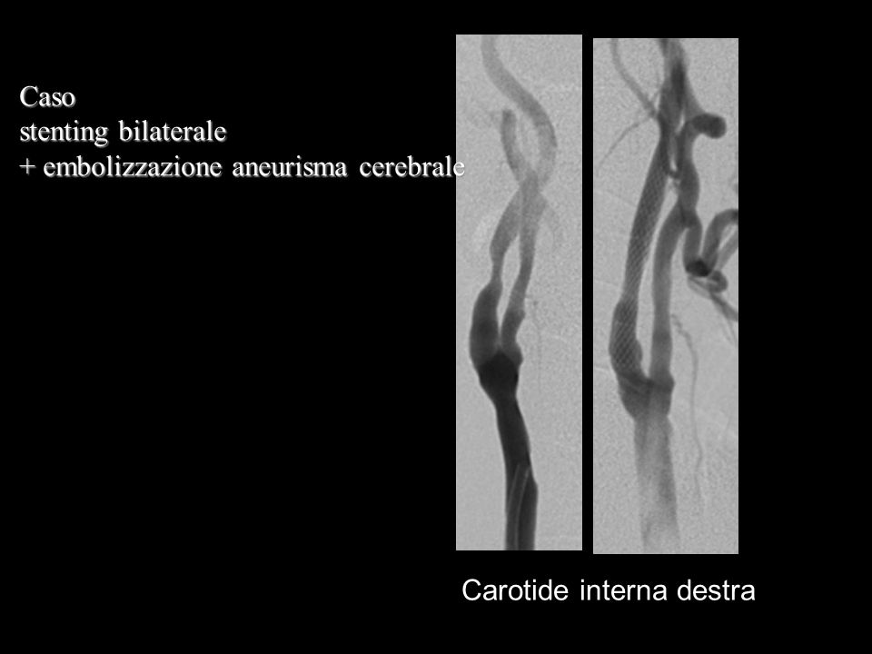 Carotide interna destra Caso stenting bilaterale + embolizzazione aneurisma cerebrale
