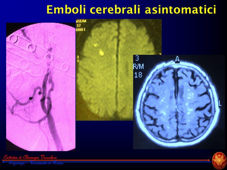 Cattedra di Chirurgia Vascolare Sapienza – Università di Roma Emboli cerebrali asintomatici