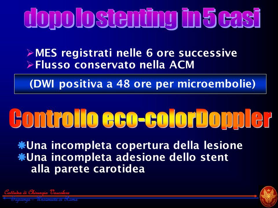 Cattedra di Chirurgia Vascolare Sapienza – Università di Roma MES registrati nelle 6 ore successive Flusso conservato nella ACM (DWI positiva a 48 ore