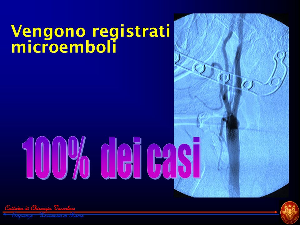 Cattedra di Chirurgia Vascolare Sapienza – Università di Roma Vengono registrati microemboli
