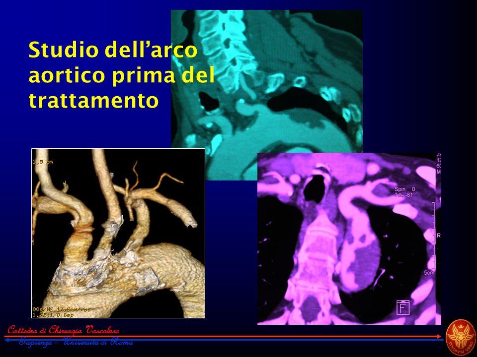 Cattedra di Chirurgia Vascolare Sapienza – Università di Roma Studio dellarco aortico prima del trattamento