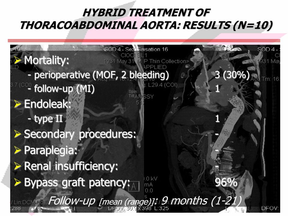 HYBRID TREATMENT OF THORACOABDOMINAL AORTA: RESULTS (N=10) Mortality: Mortality: - perioperative (MOF, 2 bleeding)3 (30%) - follow-up (MI)1 Endoleak: Endoleak: - type II1 Secondary procedures:- Secondary procedures:- Paraplegia:- Paraplegia:- Renal insufficiency:- Renal insufficiency:- Bypass graft patency:96% Bypass graft patency:96% Follow-up [mean (range)] : 9 months (1-21)