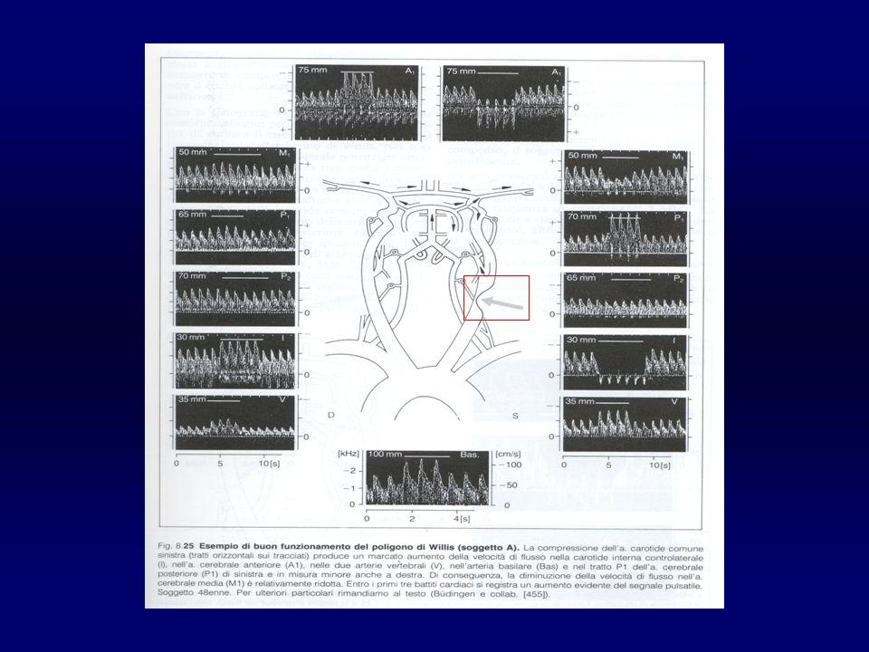 Lo studio con Doppler transcranico è integrativo nei pazienti con TIA o ictus recente per la documentazione di stenosi dei vasi intracranici, di processi di ricanalizzazione, di circoli collaterali intracranici, della riserva cerebrovascolare e di placche embolizzanti (Raccomandazione 5.15 Grado D) Lo studio con Doppler transcranico è integrativo nei pazienti candidati alla endoarteriectomia carotidea per la valutazione preoperatoria ed il monitoraggio intraoperatorio (Raccomandazione 5.16 Grado D) Lo studio con Doppler transcranico è indicato nei soggetti con sospetto shunt cardiaco dx-sn come sostitutivo dellecocardiografia transesofagea (Raccomandazione 5.17 Grado D) Lo studio con Doppler transcranico è indicato nei soggetti con Emorragia subaracnoidea per la valutazione di eventuali fenomeni di vasospasmo (Raccomandazione 5.18 Grado D) 4° Edizione, 2005