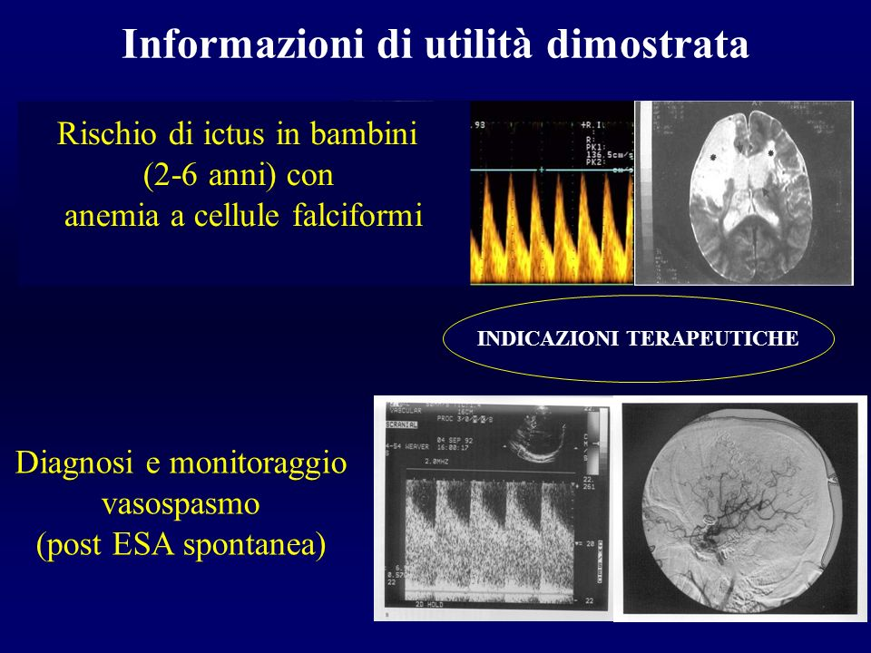 Surgical Treatment of Asymptomatic Carotid Stenosis C.