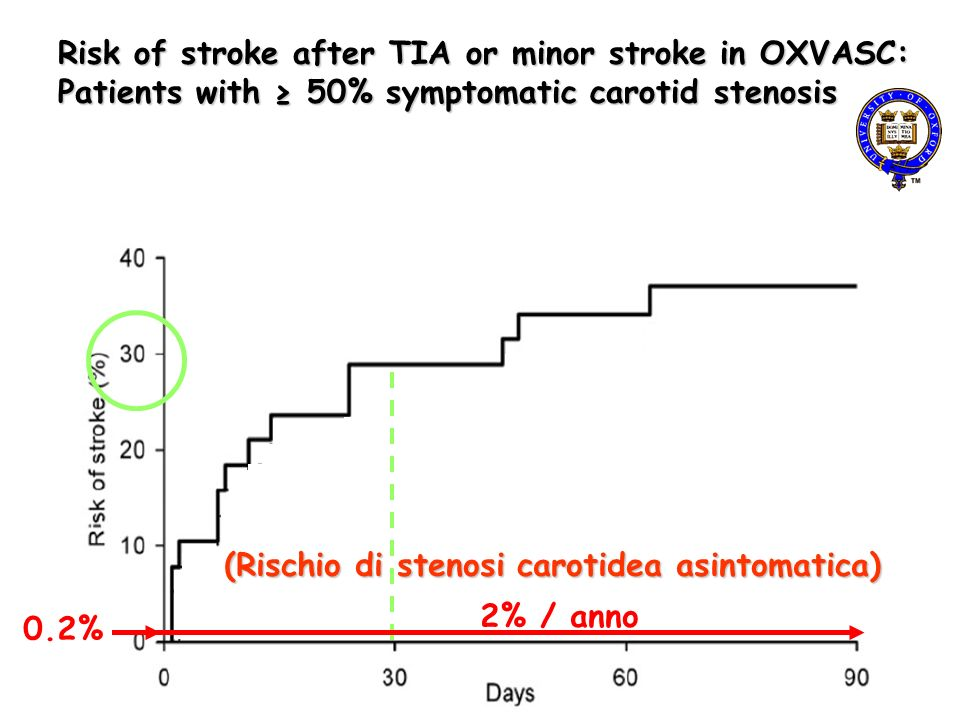 (…) Angiography-style stenosis measures have similar inter-relationships when applied to CDU, but… ICA PSV … do not improve accuracy of ultrasound over peak systolic ICA velocity alone.