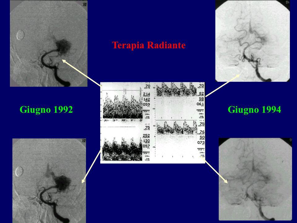 Giugno 1992Giugno 1994 Terapia Radiante
