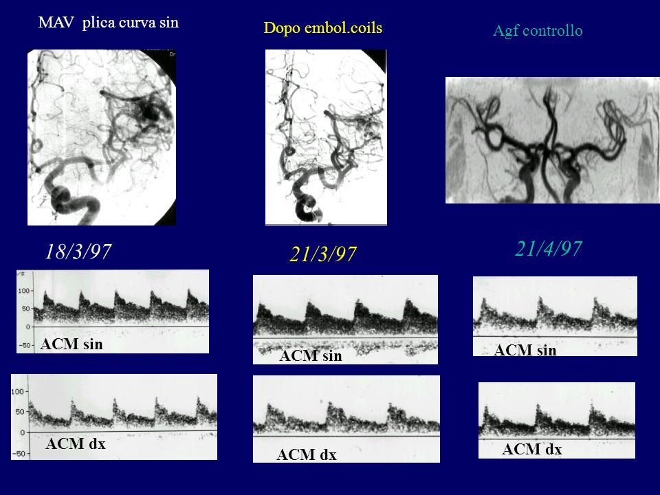 MAV plica curva sin ACM sin ACM dx ACM sin ACM dx Dopo embol.coils Agf controllo 18/3/97 21/3/97 21/4/97