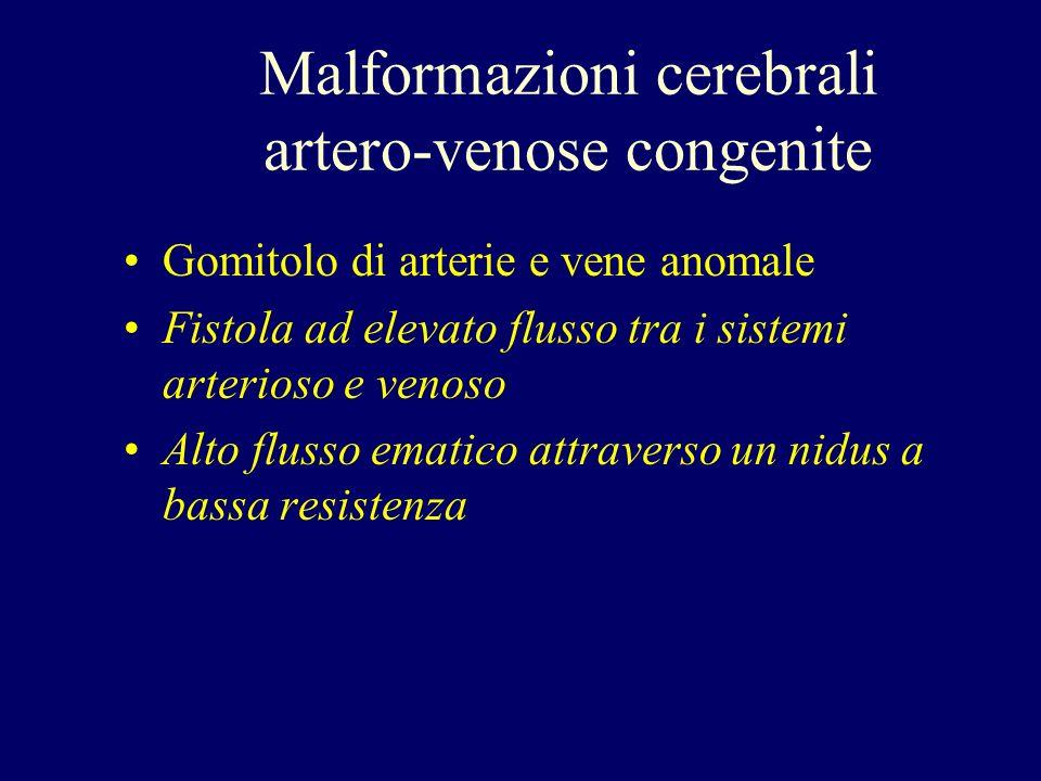 Gomitolo di arterie e vene anomale Fistola ad elevato flusso tra i sistemi arterioso e venoso Alto flusso ematico attraverso un nidus a bassa resisten