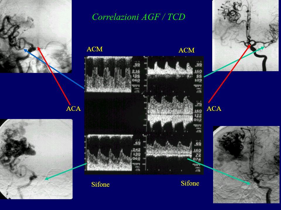 ACM ACA Sifone ACM ACA Correlazioni AGF / TCD
