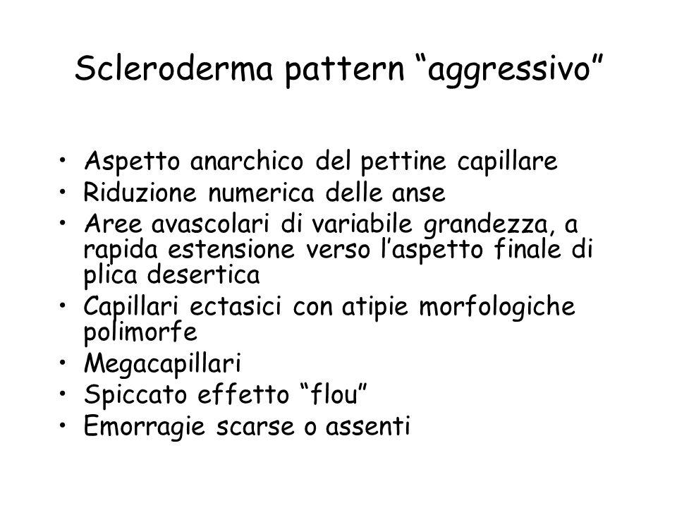 Scleroderma pattern aggressivo Aspetto anarchico del pettine capillare Riduzione numerica delle anse Aree avascolari di variabile grandezza, a rapida