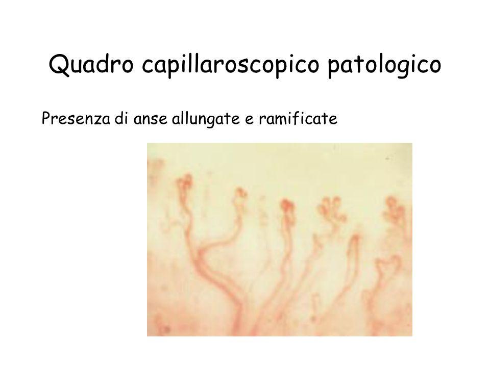 Quadro capillaroscopico patologico Presenza di anse allungate e ramificate