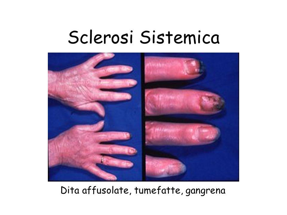 Dita affusolate, tumefatte, gangrena