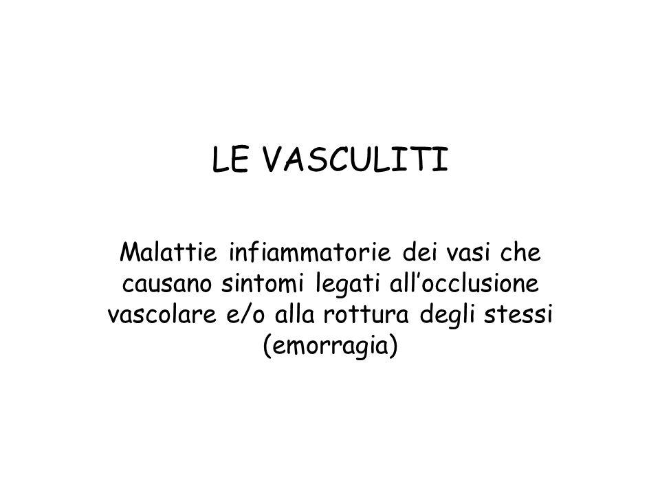 LE VASCULITI Malattie infiammatorie dei vasi che causano sintomi legati allocclusione vascolare e/o alla rottura degli stessi (emorragia)