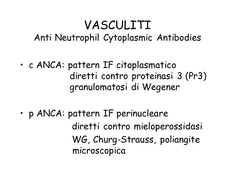VASCULITI Anti Neutrophil Cytoplasmic Antibodies c ANCA: pattern IF citoplasmatico diretti contro proteinasi 3 (Pr3) granulomatosi di Wegener p ANCA: