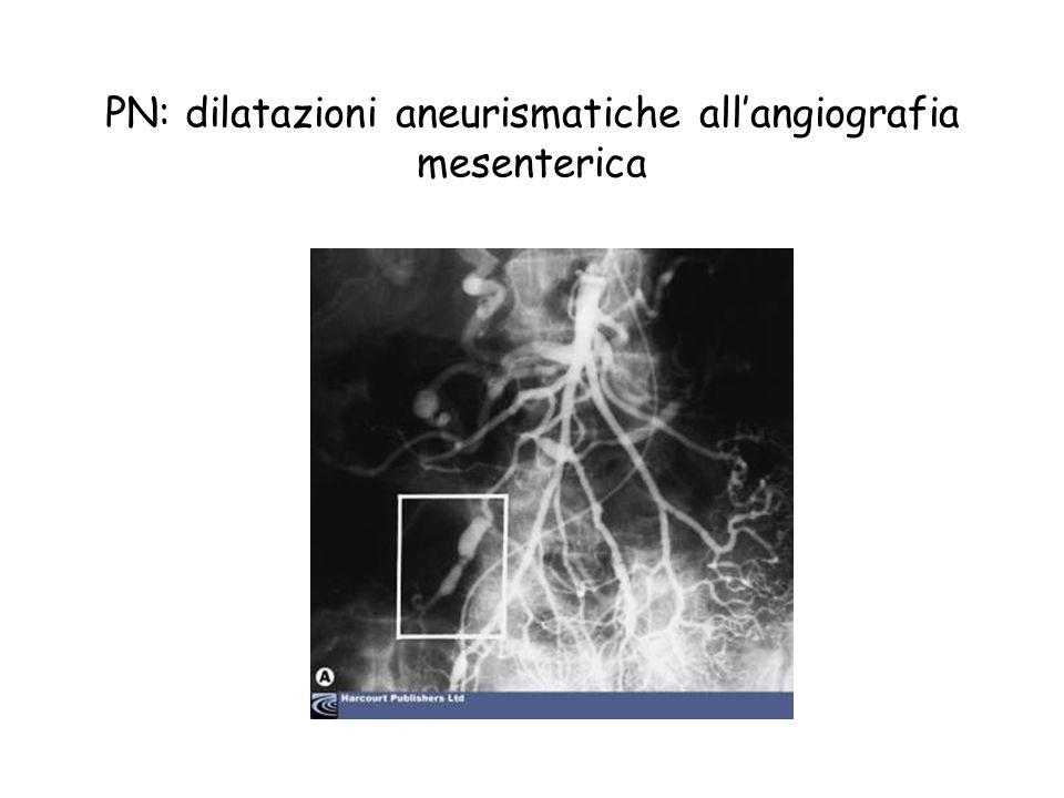 PN: dilatazioni aneurismatiche allangiografia mesenterica