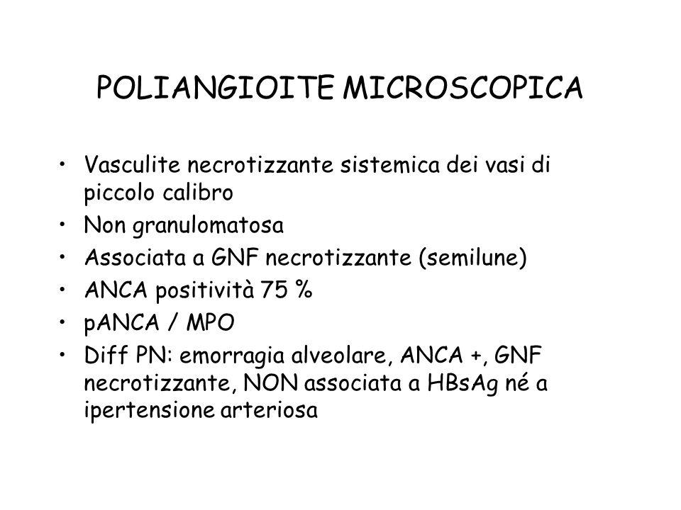 POLIANGIOITE MICROSCOPICA Vasculite necrotizzante sistemica dei vasi di piccolo calibro Non granulomatosa Associata a GNF necrotizzante (semilune) ANC
